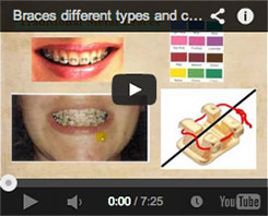 braces different types and colors